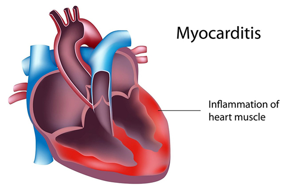 Myocarditis: What are the Symptoms, Causes and Treatment?